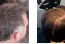 Antes e após a aplicação de um densificador capilar.