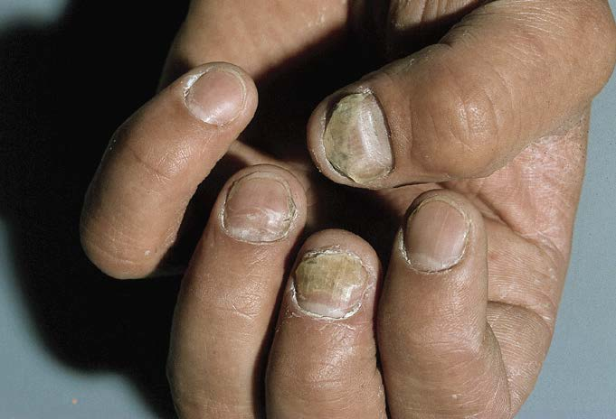 exemplo de micose nas unhas (onicomicose)