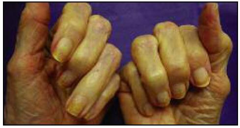 exemplo de degranulação da queratina nas unhas
