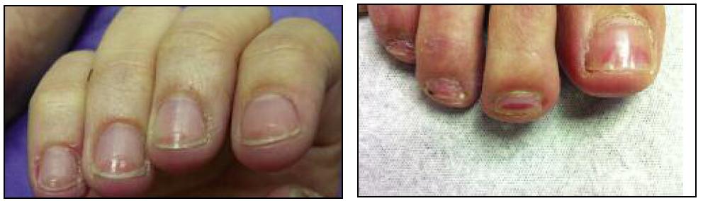 exemplo de afinamento das unhas.