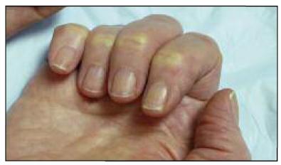 Riscos das unhas de acrigel: afinamento das unhas