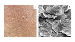 micrografia eletrônica da pele seca