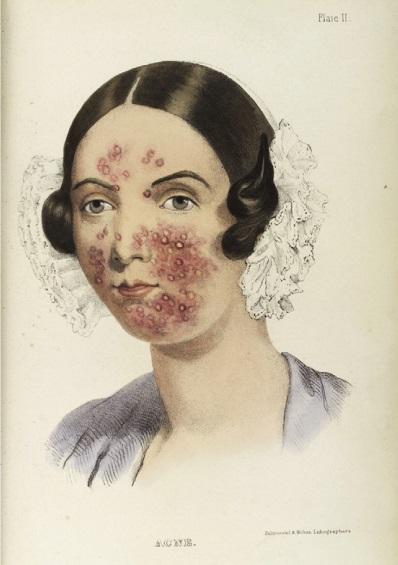 Ilustração de mulher com acne extraída do artigo de Mahmood e Shipman, publicado no International Journal of Women's Dermatology (2017). acne O que é acne? POST 20180627 acne