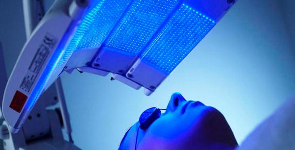 Fototerapia com luz azul para tratamento da acne.