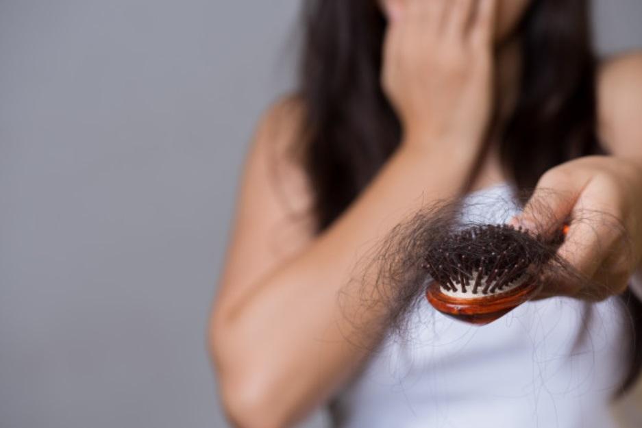 alopécia androgenética Principais causas da queda capilar Parte 2 alopecia androgenetica
