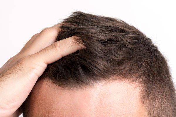 tratamento estético para calvicie Tratamentos estéticos para queda capilar Parte 4 tratamentos esteticos para alopecia